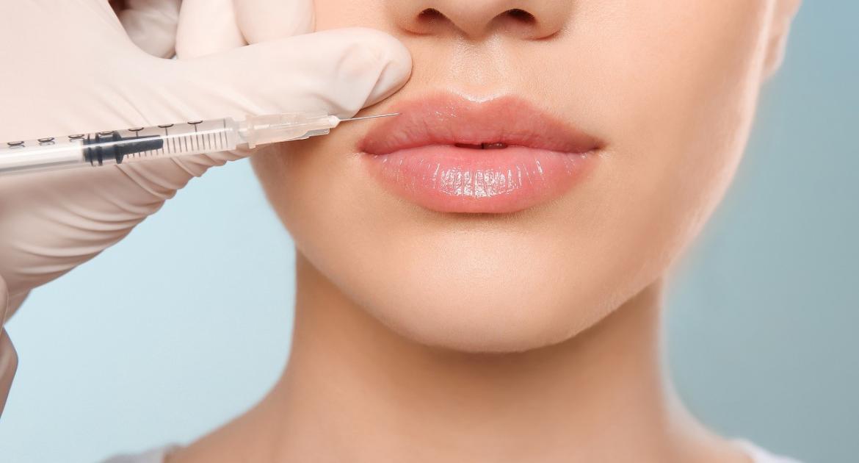 Lippenvergrößerung mit Fillern